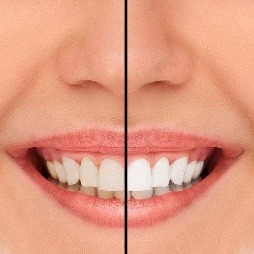side by side image of woman's bright smile I teeth whitening at woodin creek dental