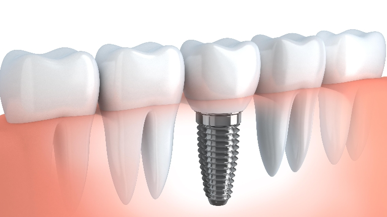 Dental Implant | Woodin Creek Dental