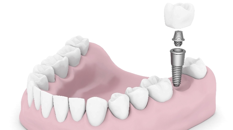 Dental Implants | Woodin Creek Dental